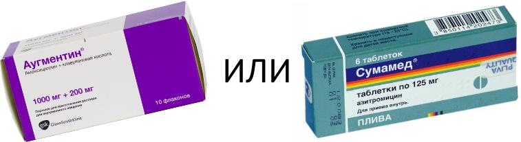 Аугментин или Сумамед
